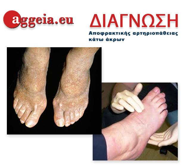 Aggeia.eu - Diagnosi-Apofraktiki-Artiriopatheia-Kato-Akron-Tzorbatzoglou-Ioannis - διάγνωση Αποφρακτικής αρτηριοπάθειας κάτω άκρων