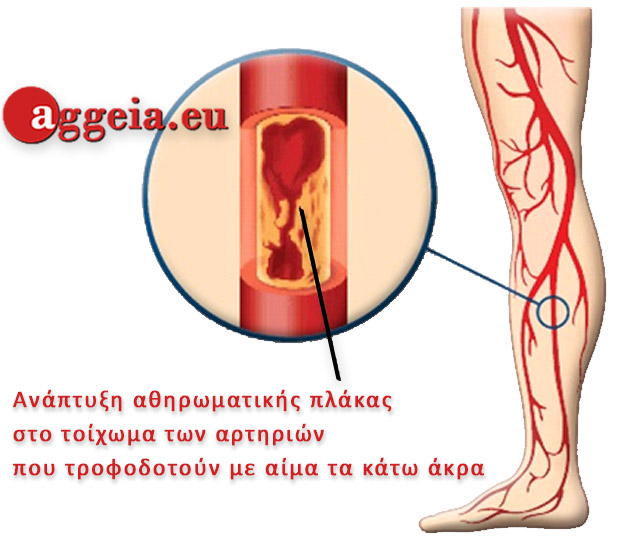 Aggeia.eu - Diagnosis-Apofraktiki-Artiriopatheia-Kato-Akron-Tzorbatzoglou-Ioannis