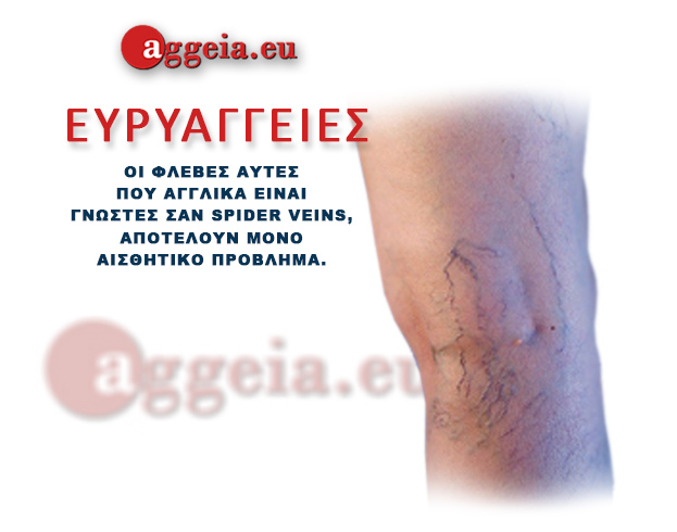 Aggeia.eu -Evriaggeies - Tzorbatzoglou-Ioannis - ΕΥΡΥΑΓΓΕΙΕΣ - Ευρυαγγείες -