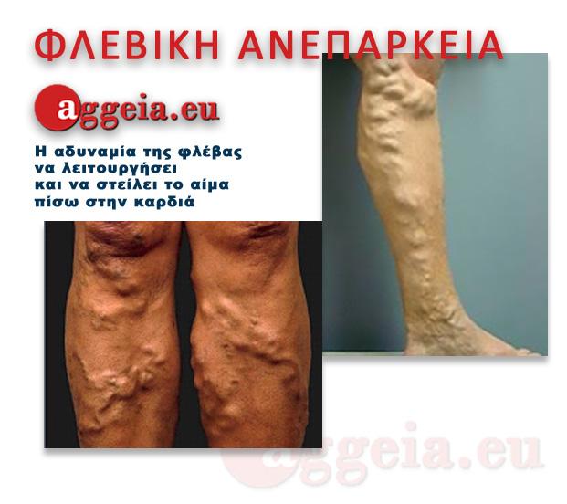Aggeia.eu -Fleviki Aneparkeia - Kirsoi - Tzorbatzoglou-Ioannis - Τι είναι φλεβική ανεπάρκεια; Είναι η αδυναμία της φλέβας να λειτουργήσει και να στείλει το αίμα πίσω στην καρδιά.