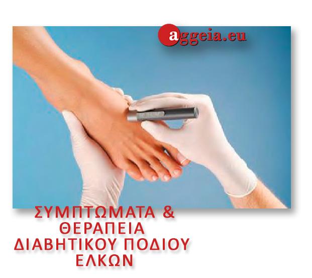 συμπτώματα - ΘΕΡΑΠΕΙΑ ΔΙΑΒΗΤΙΚΟΥ ΠΟΔΙΟΥ/ΕΛΚΩΝ - Aggeia.eu - elkoi-podion - Διαβητικό πόδι - Περιφερική αγγειακή νόσος