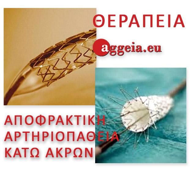 Aggeia.eu - Therapeia-Artirias-Apofraktiki-Artiriopatheia-Kato-Akron-Tzorbatzoglou-Ioannis - θεραπεία Αποφρακτική αρτηριοπάθεια κάτω άκρων