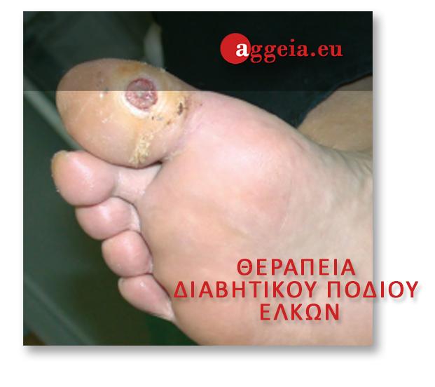 ΘΕΡΑΠΕΙΑ ΔΙΑΒΗΤΙΚΟΥ ΠΟΔΙΟΥ/ΕΛΚΩΝ - Aggeia.eu - elkoi-podion - Διαβητικό πόδι - Περιφερική αγγειακή νόσος