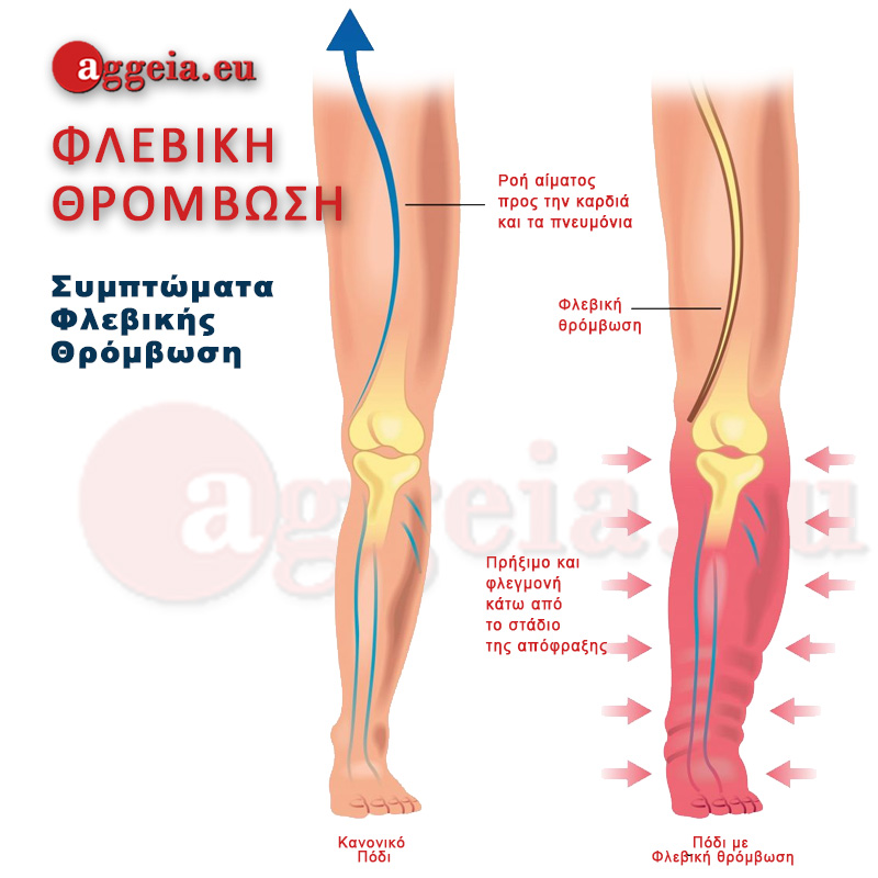 Aggeia.eu -Deep-Vein-Thrombosis Symptoms - Tzorbatzoglou-Ioannis