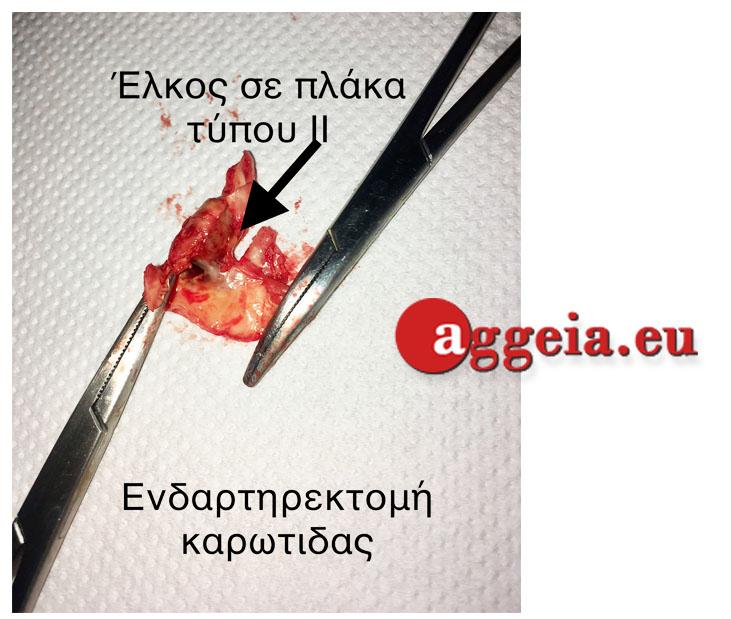 ΚΑΡΩΤΙΔΙΚΗ ΝΟΣΟΣ_Aggeia.eu_Karotidiki-Nosos