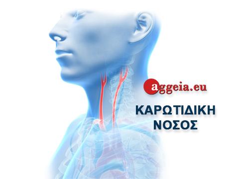 Aggeia.eu - Καρωτιδική Νόσος