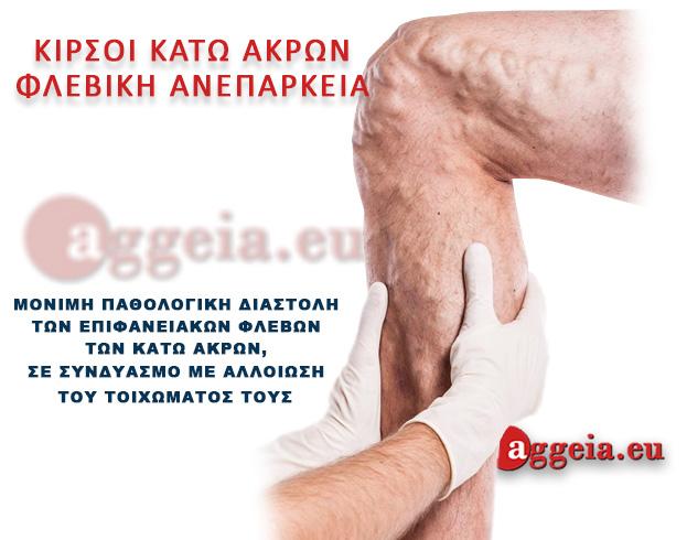 Aggeia.eu -Kirsoi- Tzorbatzoglou-Ioannis - Οι κιρσοί κάτω άκρων Κιρσοί φλεβική ανεπάρκεια