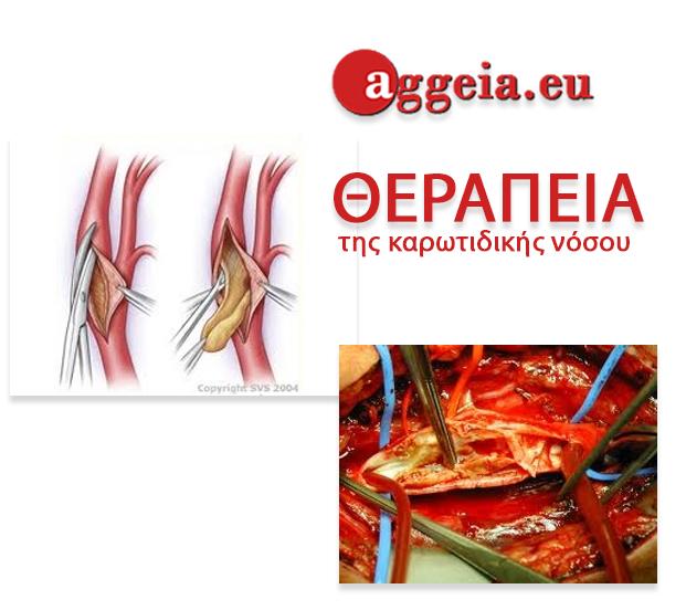Aggeia.eu - στένωση καρωτίδος - δύο μορφές θεραπείας
